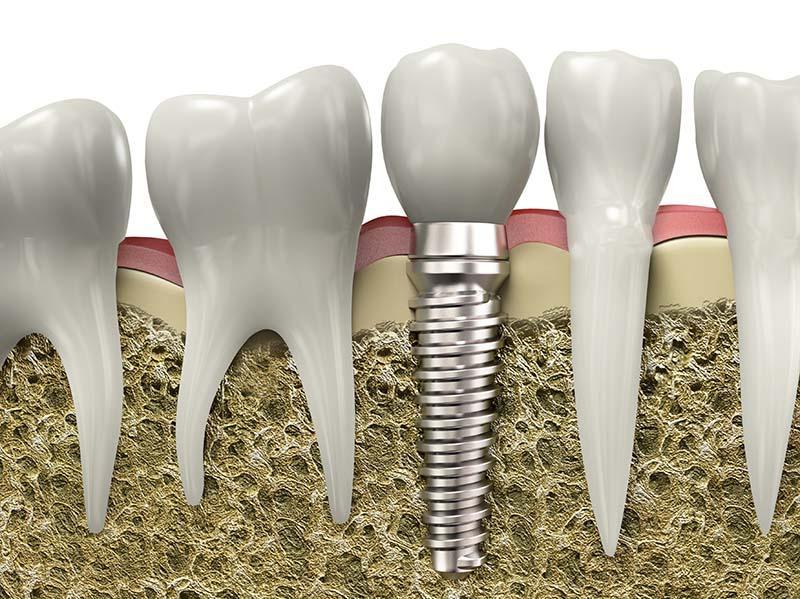 Materisl - Dental Implants