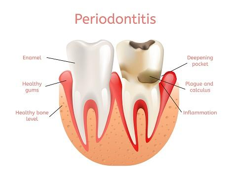 Mild Periodontal Disease