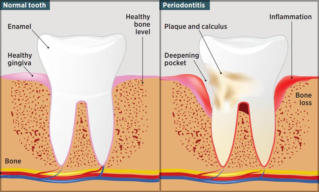 Periodontics Dieseas