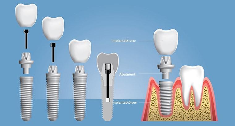 Structure - Dental Implants