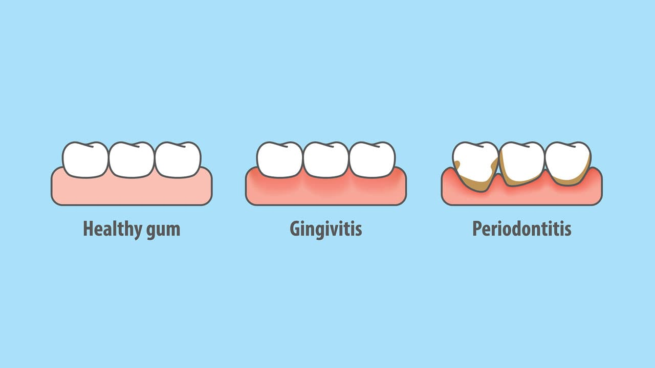 Get Back to Your Healthy Gums- Tips and Tricks