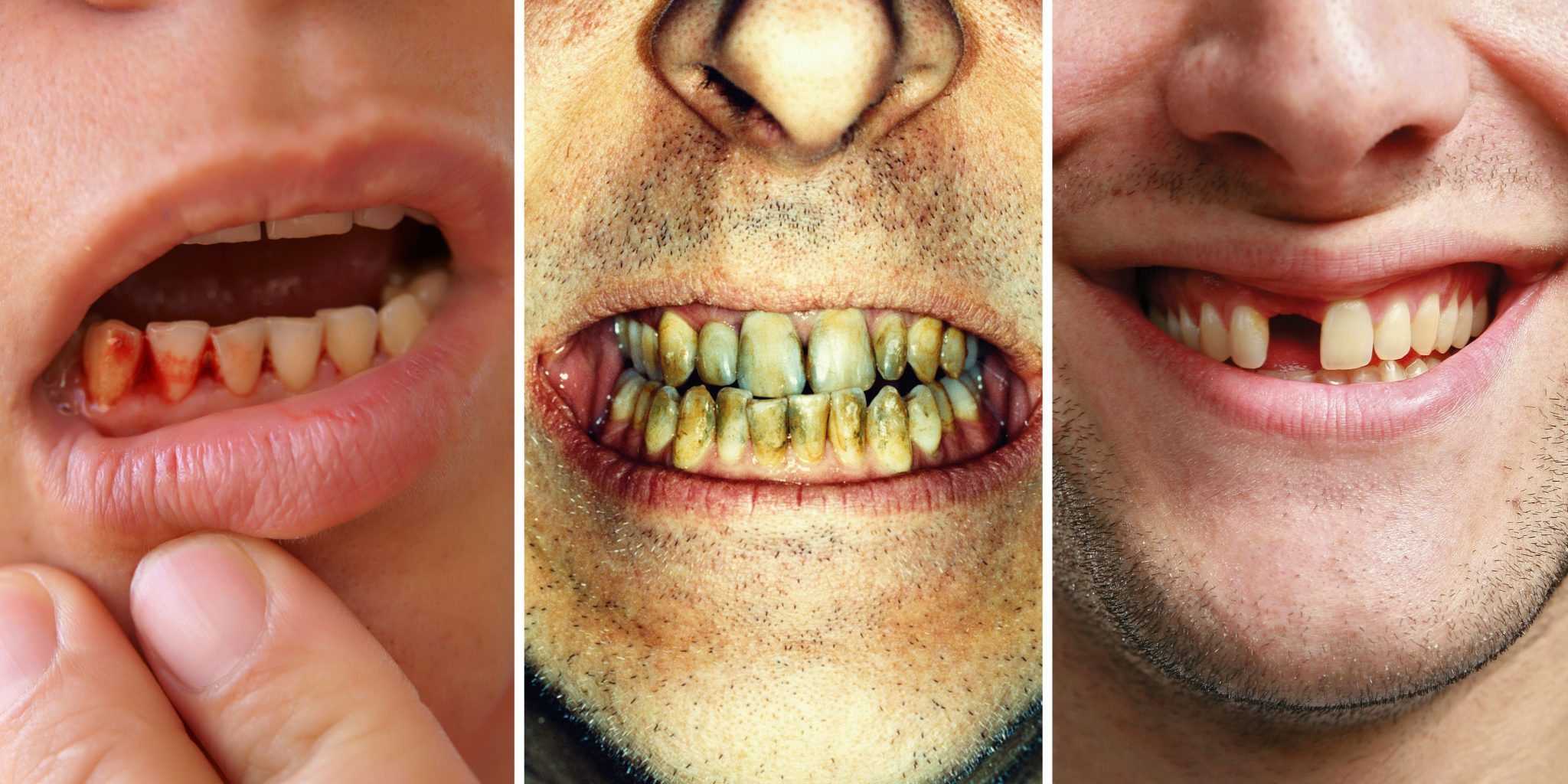 1491245438-1490902238-teeth-problems-health