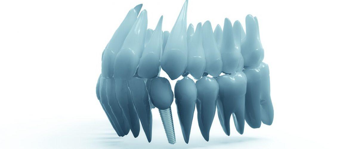 Dental Implants - Adkins Family Dentist
