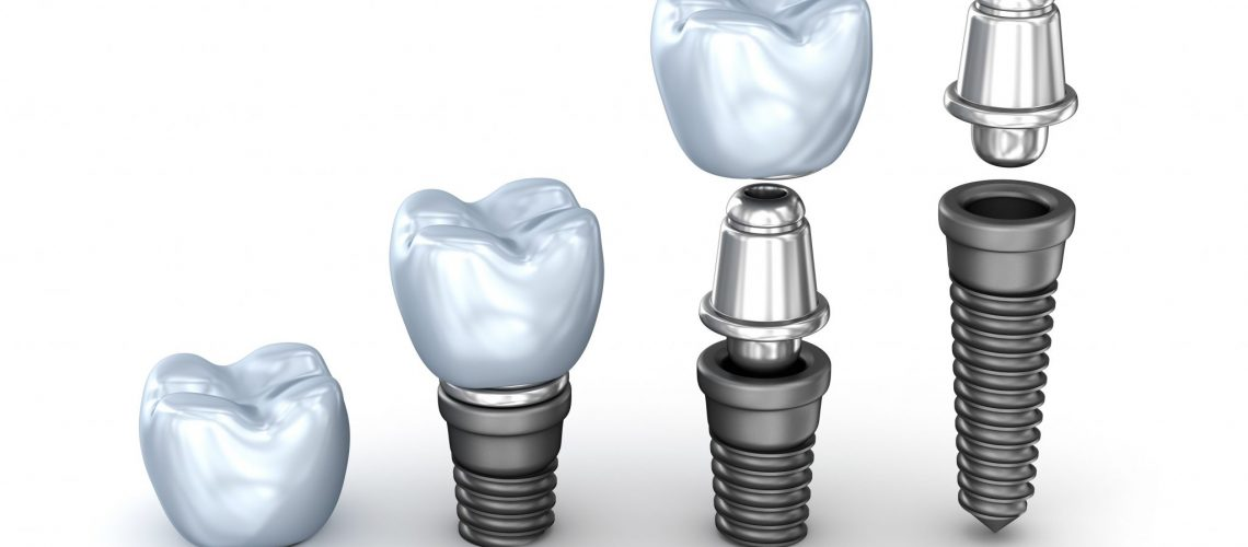 Feature Image 3 - Dental Implants
